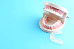 Read more about the article Unterdrückte Gefühle annehmen – wie Christine Vogel es geschafft hat, weniger  mit den Zähnen zu knirschen