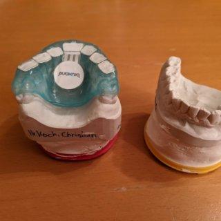 bruXane gegen Zähneknirschen: Leserfragen und Update zu meinen Erfahrungen